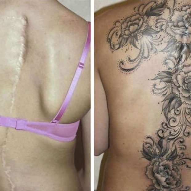 scars-tattoo-cover-up-34-590b1c5a29fab__605